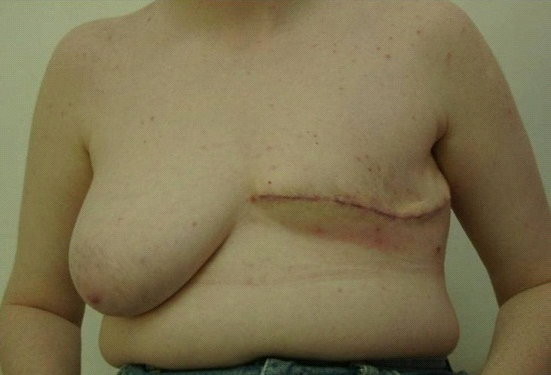 קובץ:Mastectomy3812b.png