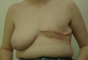 Mastectomy3812b.png